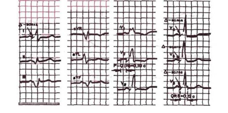 ЭКГ при синдроме Вольфа-Паркинсона-Уайта
