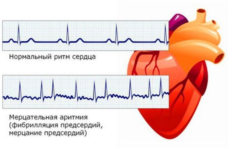 Кардиограмма при мерцательной аритмии