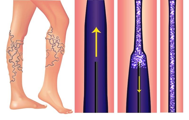 Склеротерапия