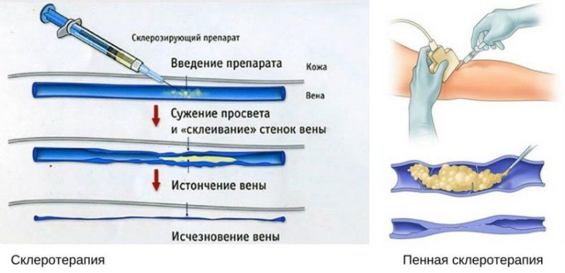 Варианты склеротерапии