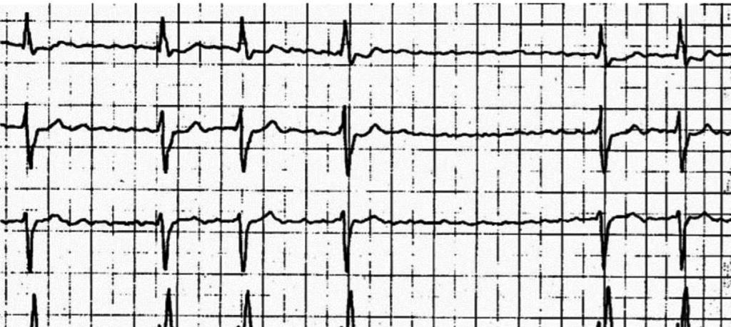 ЭКГ желудочковой аритмии