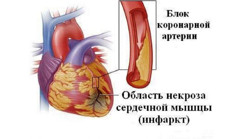 Принцип возникновения инфаркта
