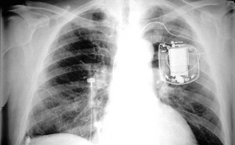 Рентген имплантируемого дефибриллятора