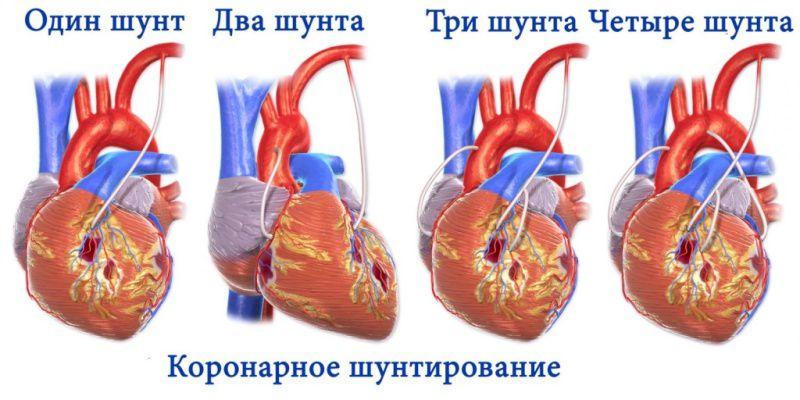Во время операции может быть установлено несколько шунтов
