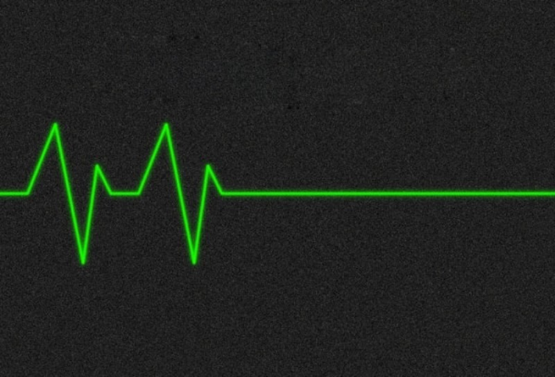 Остановка работы сердца