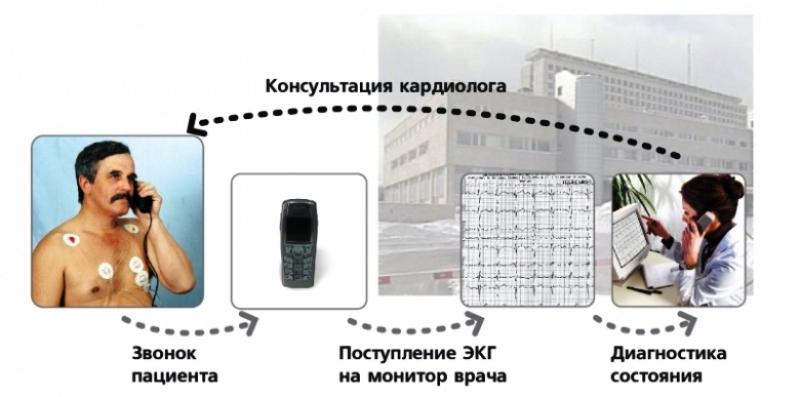Схема транстелефонного контроля ЭКГ