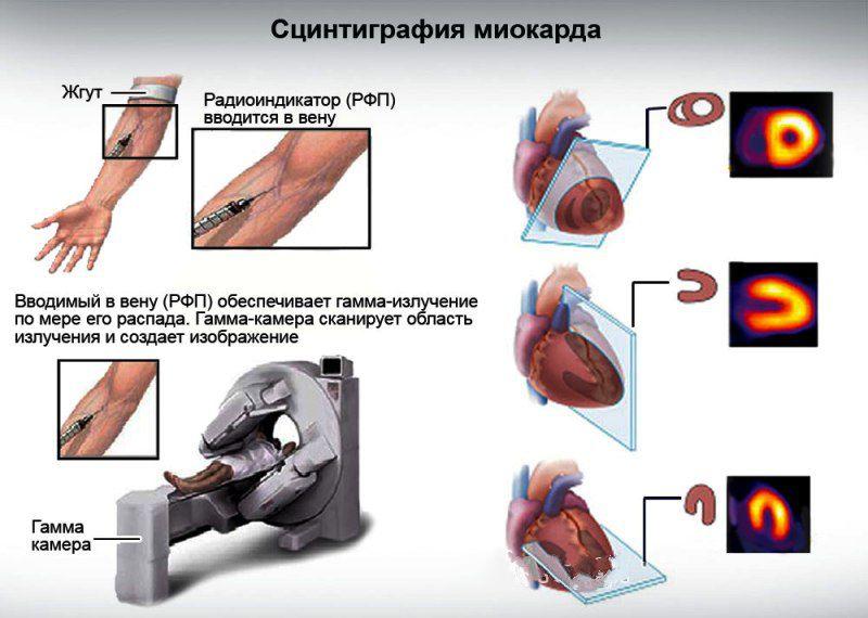 Сцинтиграфия