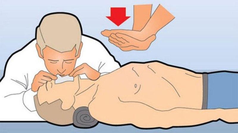 Искусственное дыхание и массаж сердца