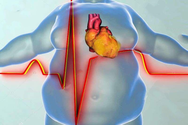 Ожирение и ИМ