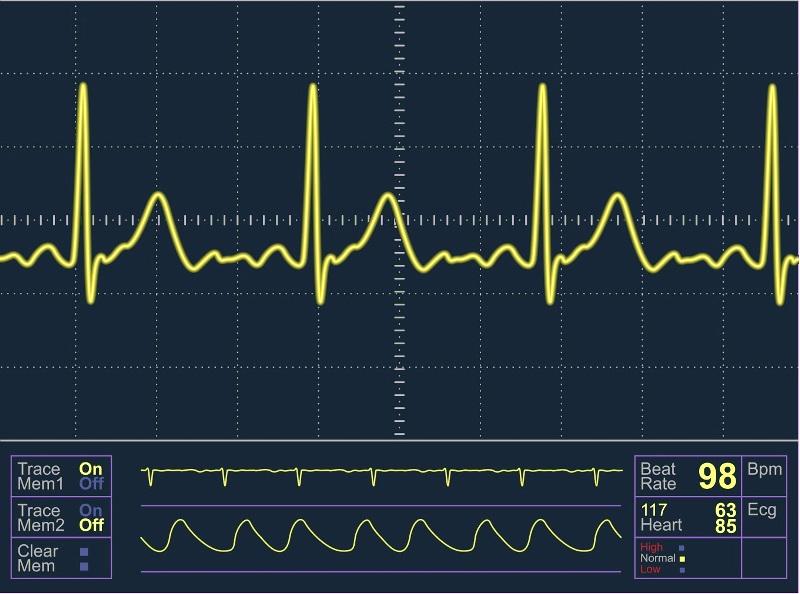 Нарушение сердечных ритмов заметны на ЭКГ