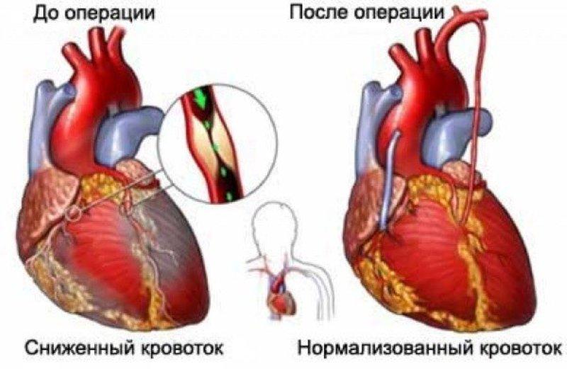 Работа сердца до и после операции