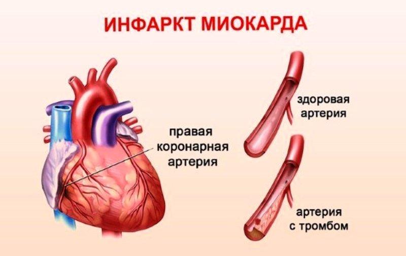 Здоровая и тробозная артерии