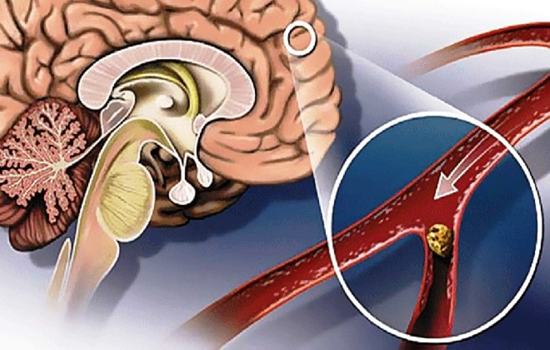 Атеросклероз головного мозга
