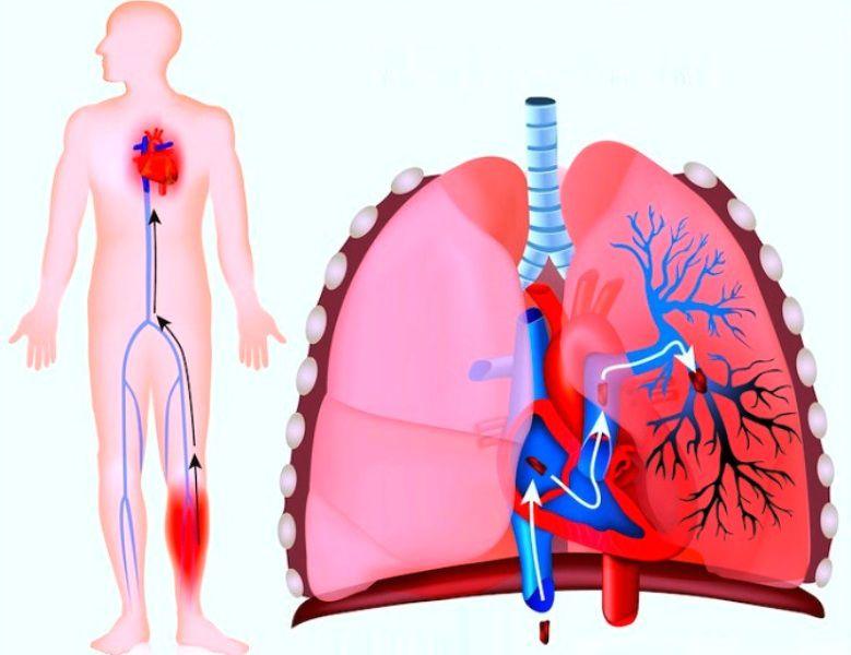Тромбоэмболия легких