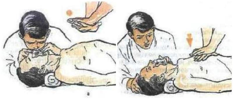 Как проводится искусственное дыхание