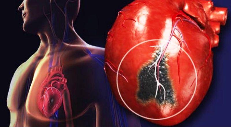 Зона пораженная инфарктом миокарда