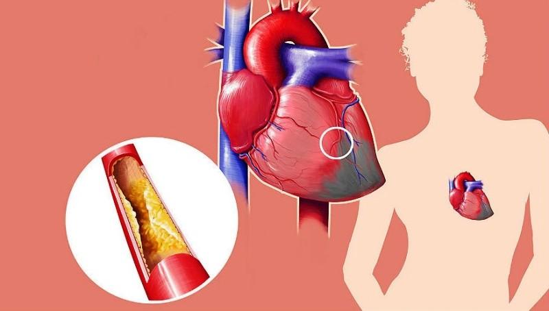 Инфаркт миокарда с подъемом сегмента ST
