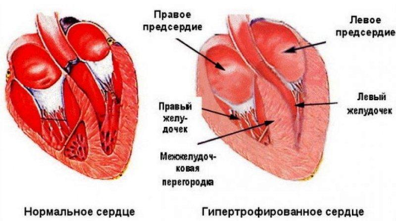 Расположение левого и правого желудочка сердца