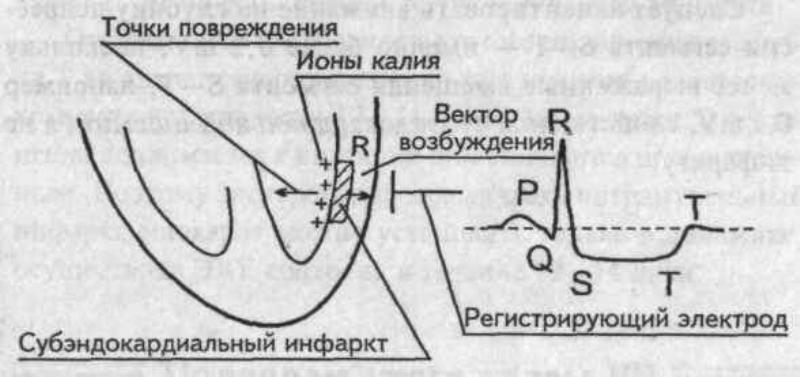 Схема субэндокардиального инфаркта
