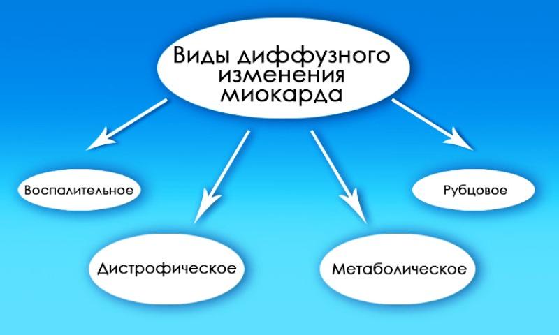 Виды диффузного миокарда