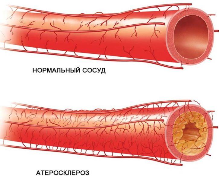 Нормальный и атеросклеротический сосуд
