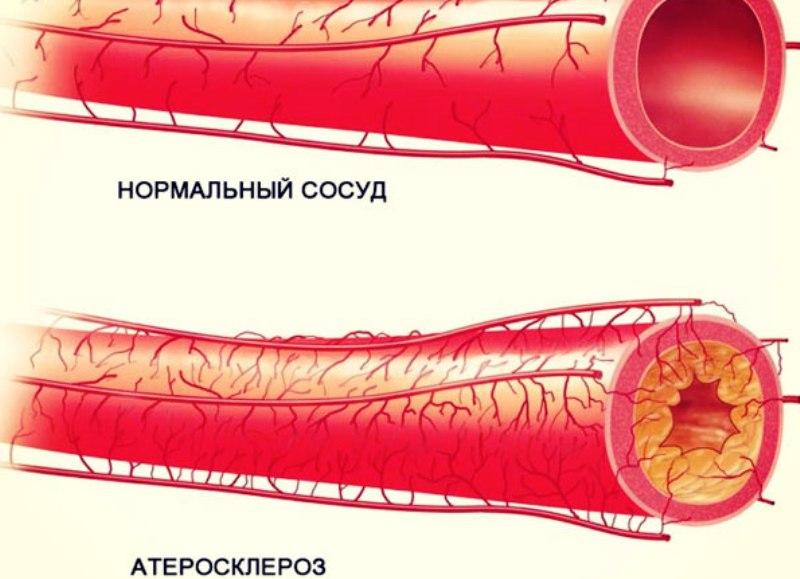 Нормальный и атеросклеротический сосуды