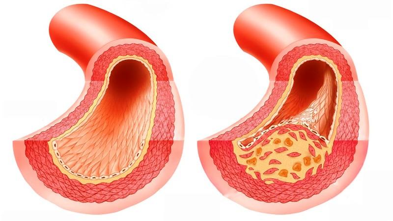 Здоровая и атеросклеротическая артерии