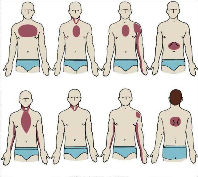 Атипичные зоны проявления болей при инфаркте