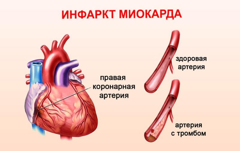 Здоровая артерия и артерия с образовавшимся тромбом