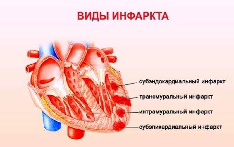 Виды инфаркта