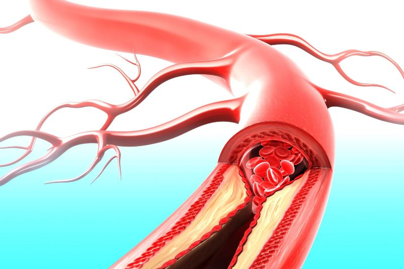 Стеноз артерии