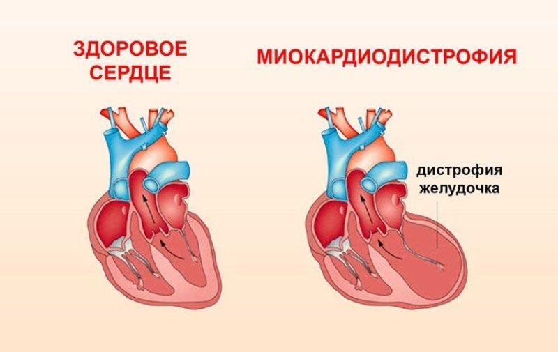 Дистрофия миокарда