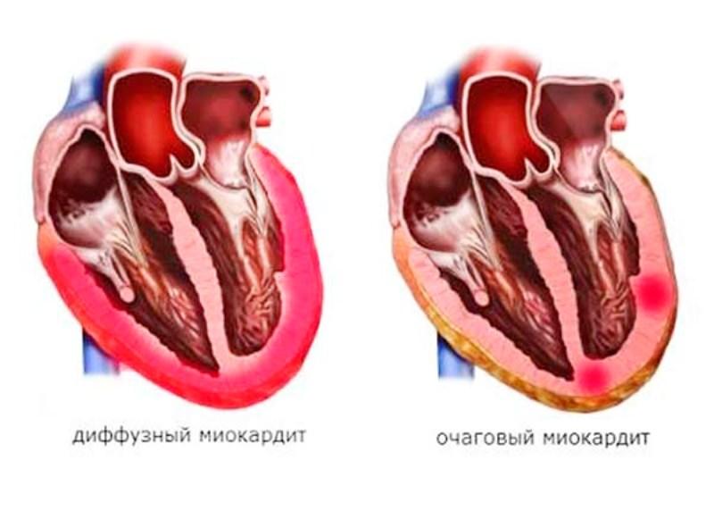 Диффузный и очаговый миокардит
