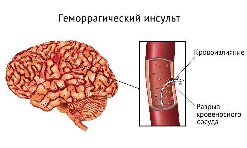Пораженная артерия