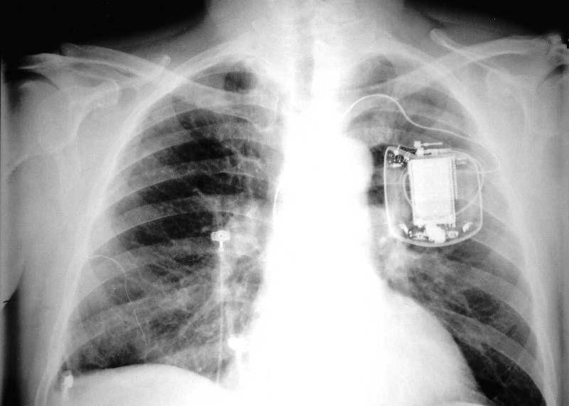 Имплантируемый дефибриллятор на рентгене