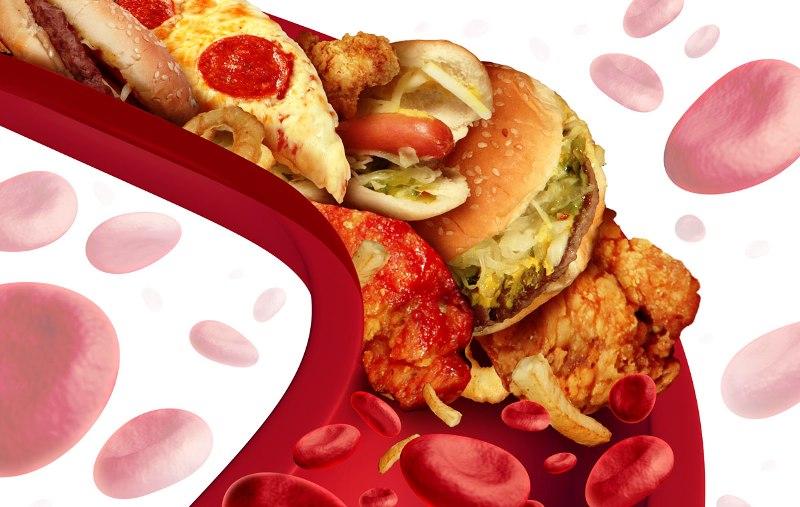 Забитые артерии