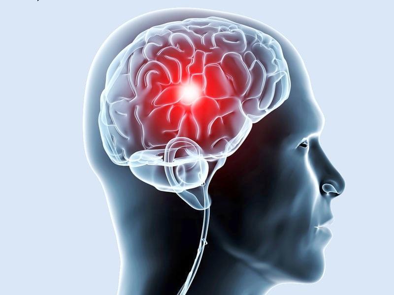 Острая церебральная ишемия