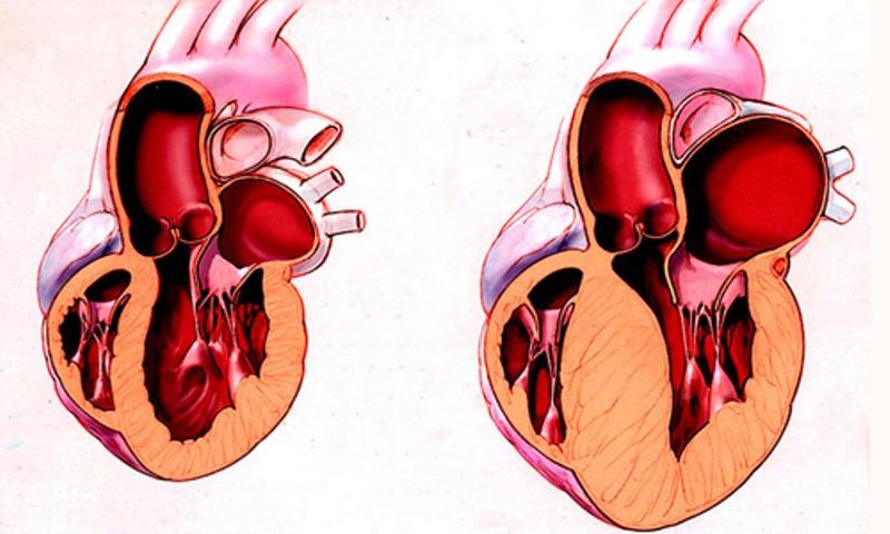Гипертрофическая кардиомиопатия (утолщение стенок)