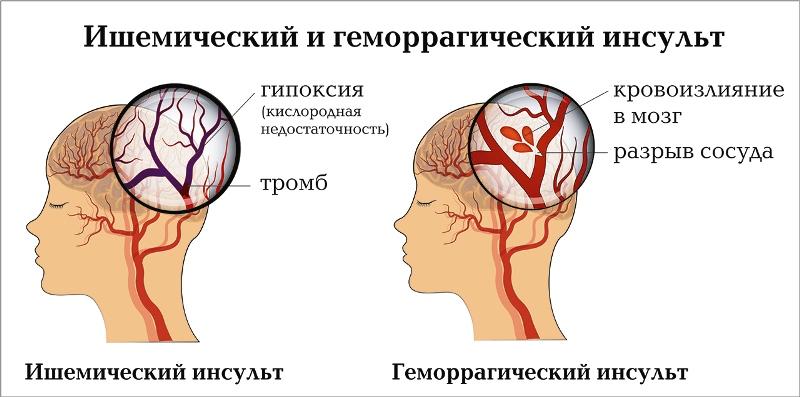Разница между ишемическим и геморрагическим инсультом