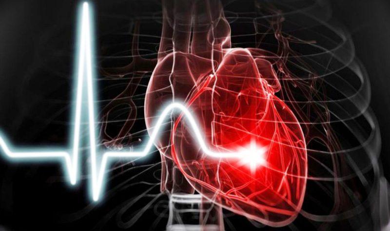 Коронарная болезнь сердца