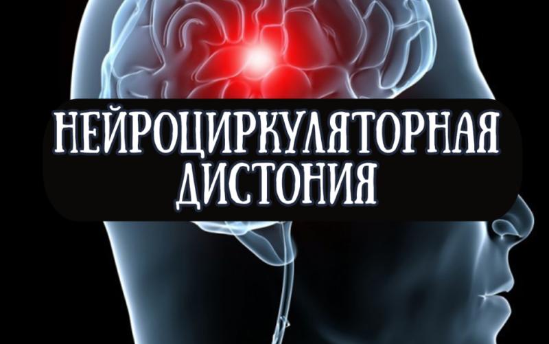 Нейроциркуляторная дистония (НЦД)