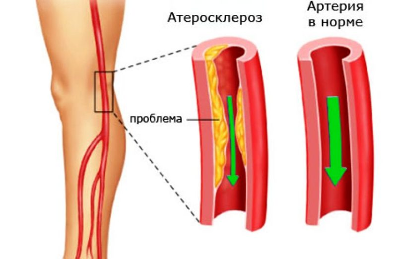 Атеросклеротическая артерия