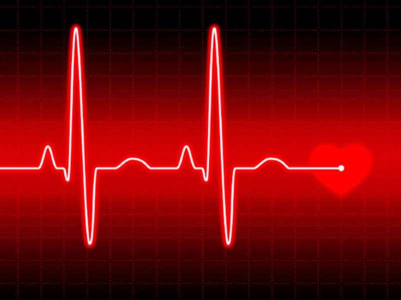 Идеальная кардиограмма