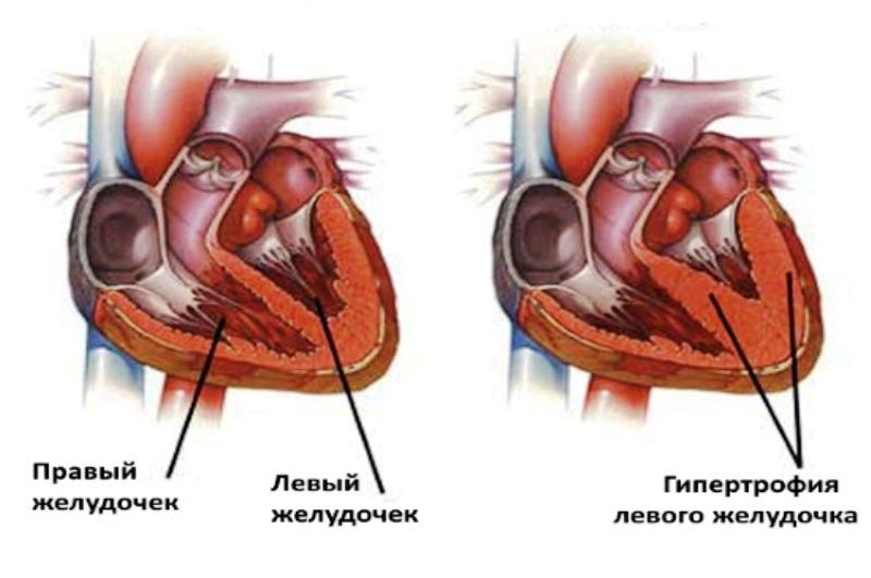 Здоровое и больное сердце