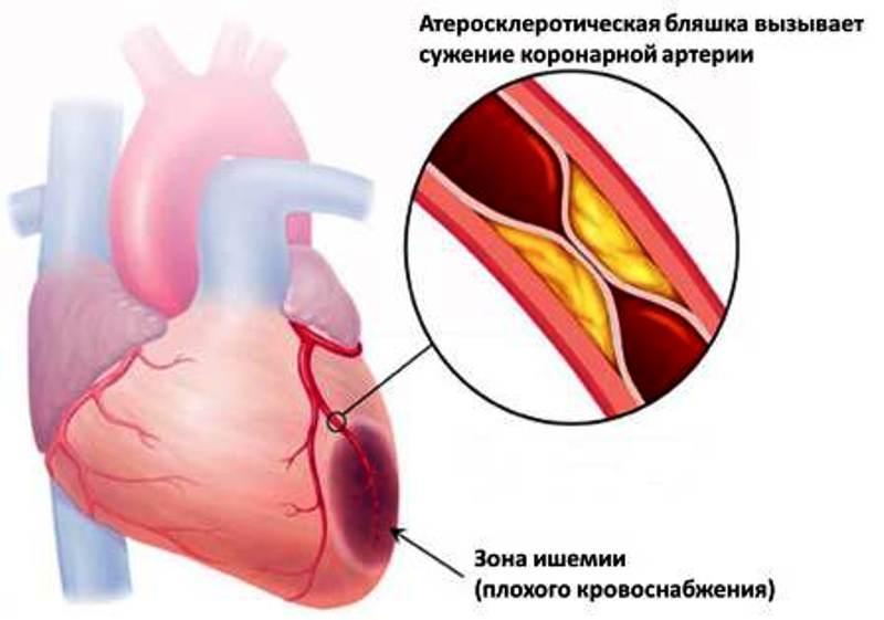 Ишемический участок сердца
