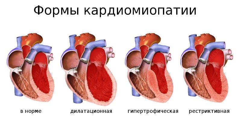 Кардиомиопатические формы