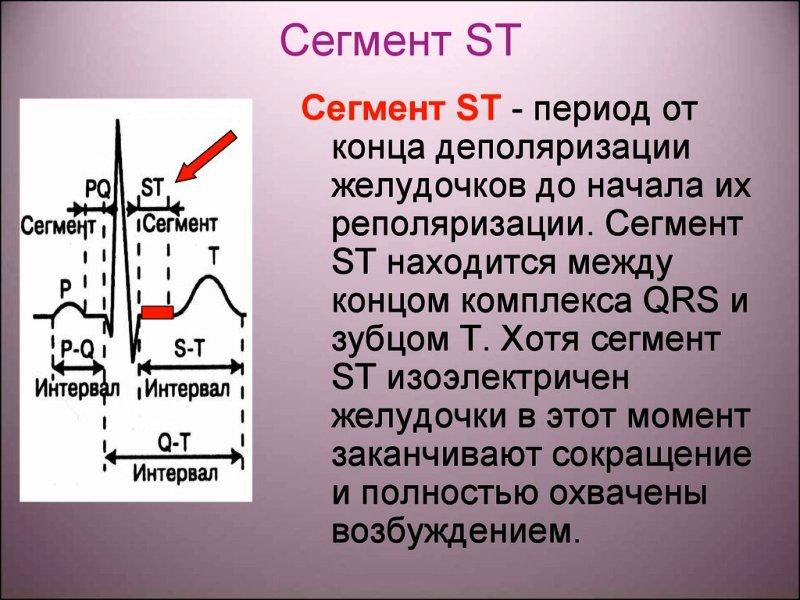Сегмент ST