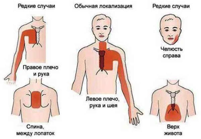 Локализация болей