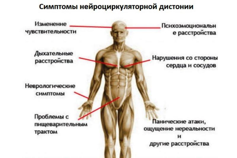 Симптоматика нейроциркуляторнной дистонии