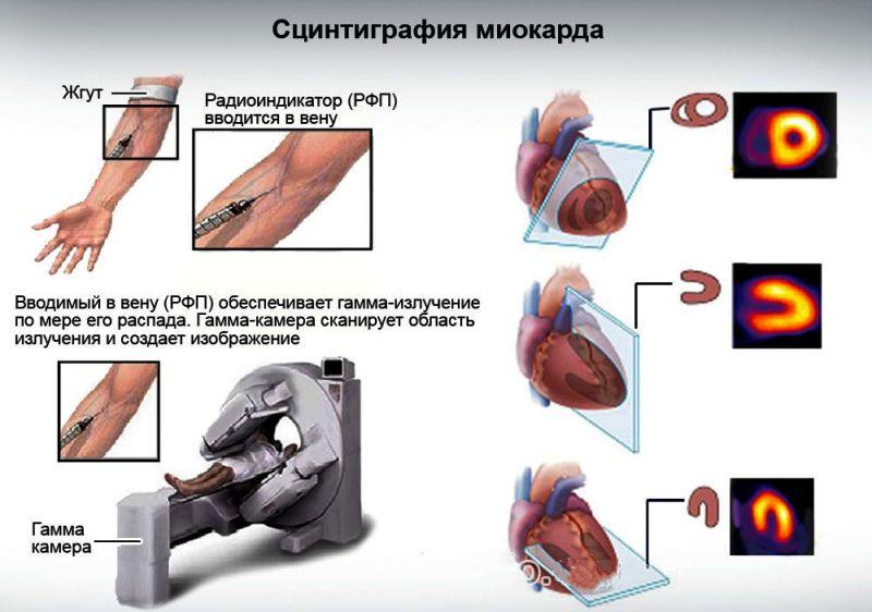 Сердечная сцинтиграфия